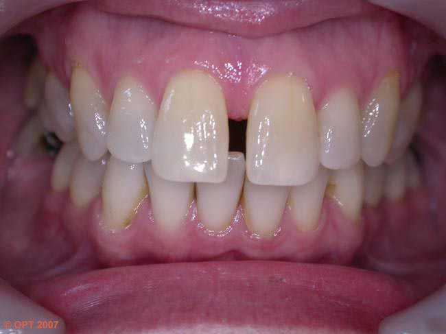 Forth Valley Smile Design - Clearstep